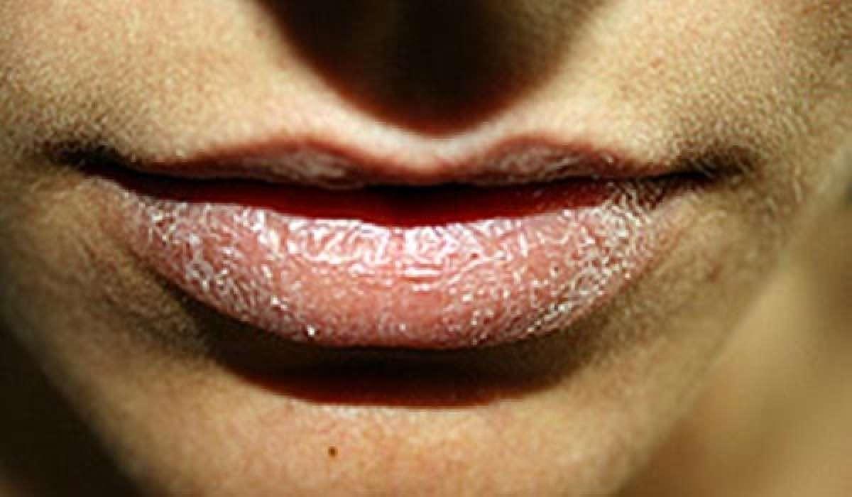 Algunos remedios para prevenir los labios secos en el ciclismo