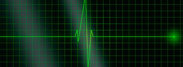La Fórmula de Karvonen, un método eficaz para calcular nuestras zonas de entrenamiento por frecuencia cardíaca
