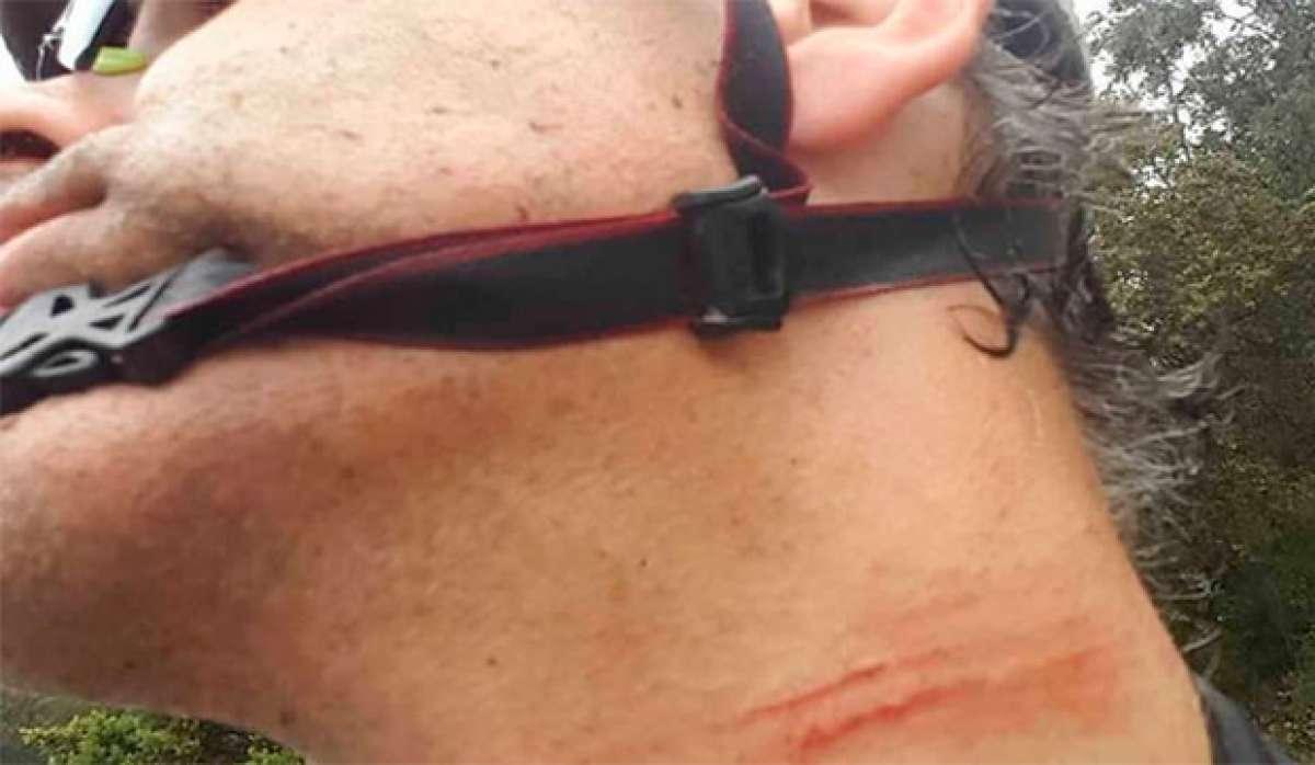 En TodoMountainBike: Alerta en Galicia y Murcia: trampas para ciclistas de montaña en Caldas de Reis y Cieza