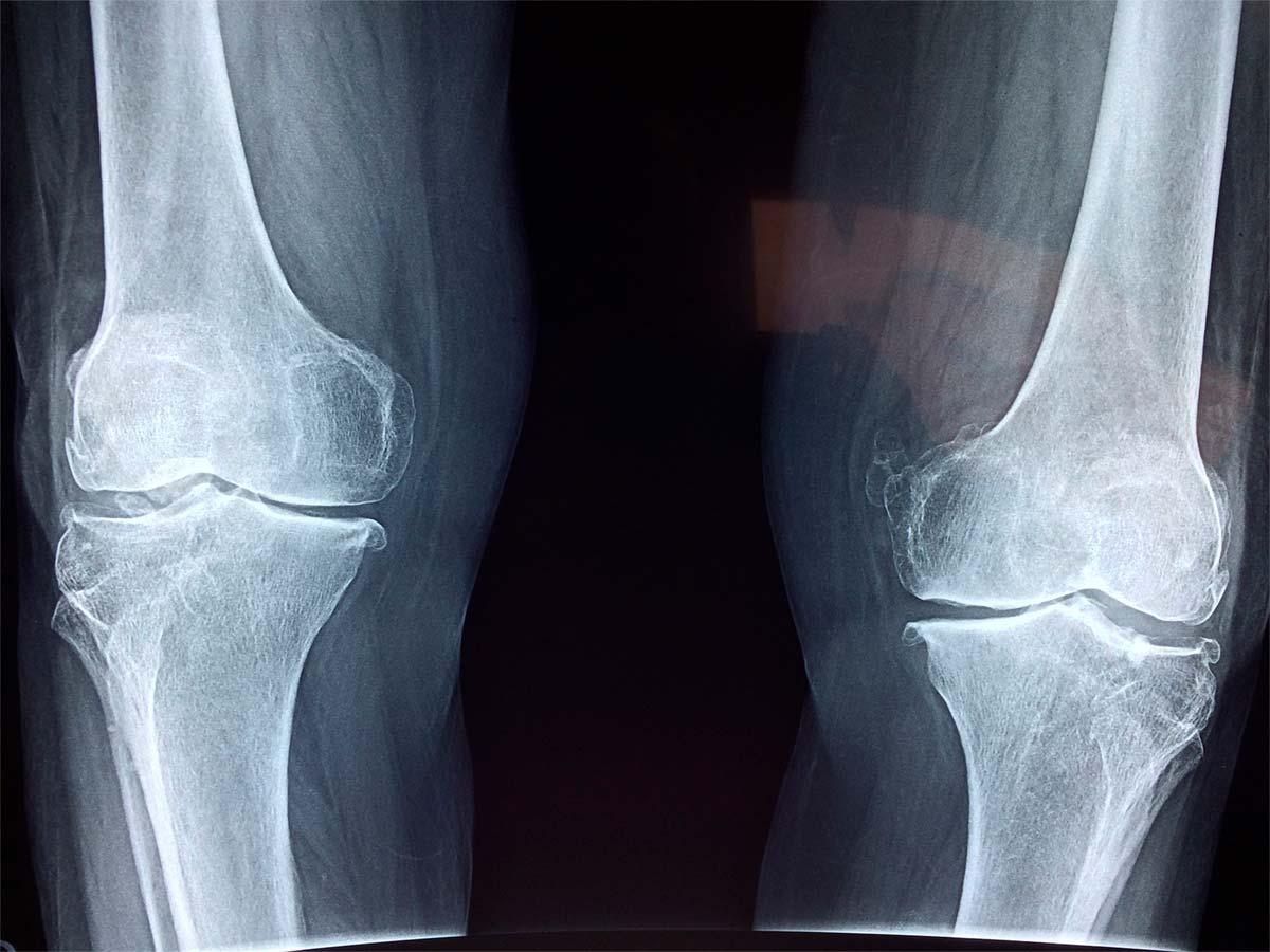 La altura del sillín y su estrecha relación con el dolor de rodillas